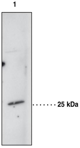 Anti-Prostaglandin D Synthase