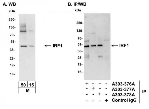 Anti-IRF1