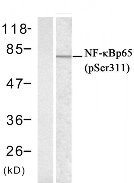 Anti-phospho-NFkB p65 (Ser311)