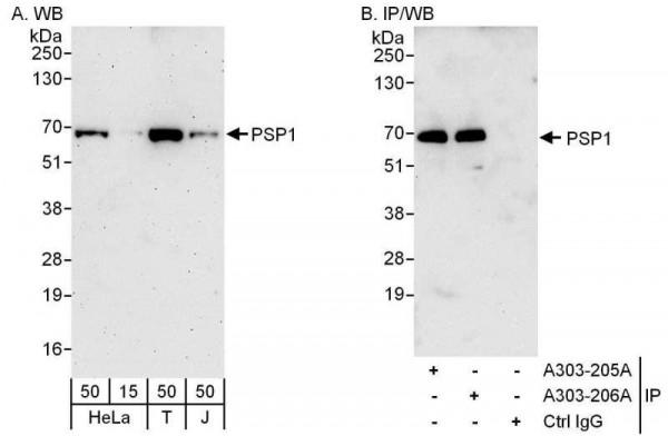 Anti-PSP1