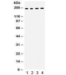 Anti-Thrombospondin / THBS1