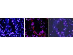 Anti-Interleukin-1 beta (IL-1b) (mouse)