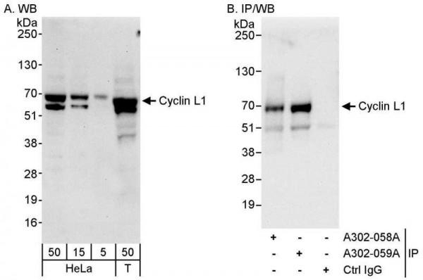 Anti-Cyclin L1