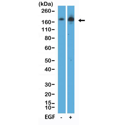 Anti-phospho-EGFR (Tyr1068) (human), Rabbit Monoclonal (RM443)