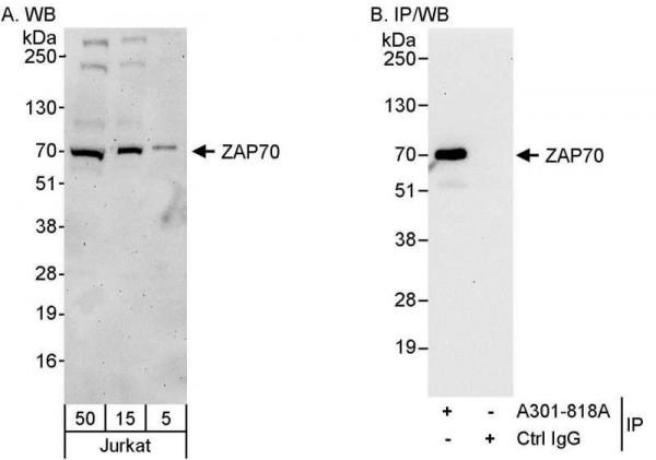 Anti-ZAP70