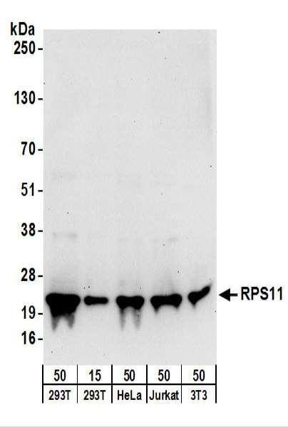 Anti-RPS11