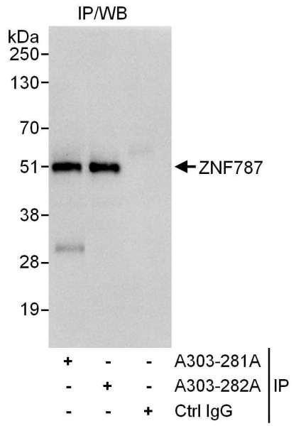 Anti-ZNF787
