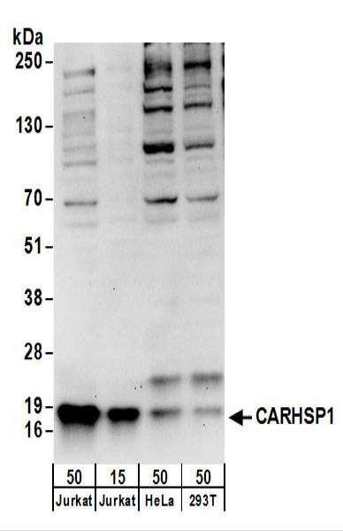 Anti-CARHSP1