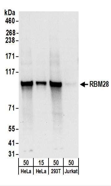 Anti-RBM28