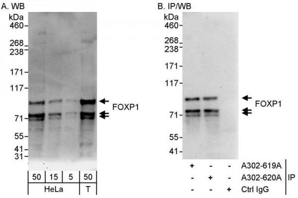 Anti-FOXP1
