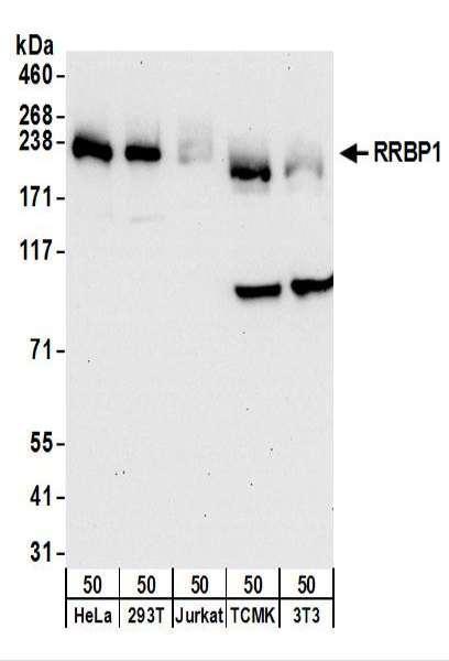 Anti-RRBP1