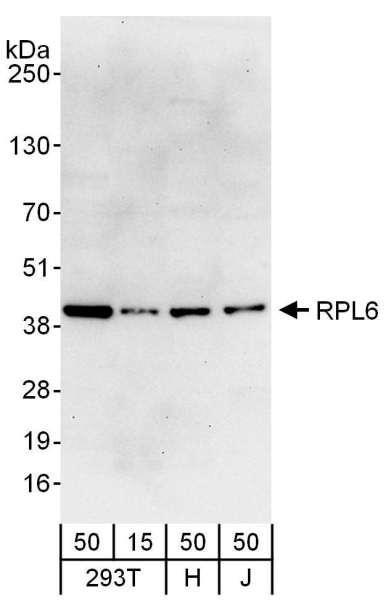 Anti-RPL6