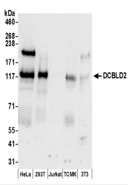 Anti-DCBLD2