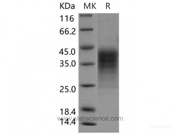 LIF Protein (His Tag) (recombinant human)