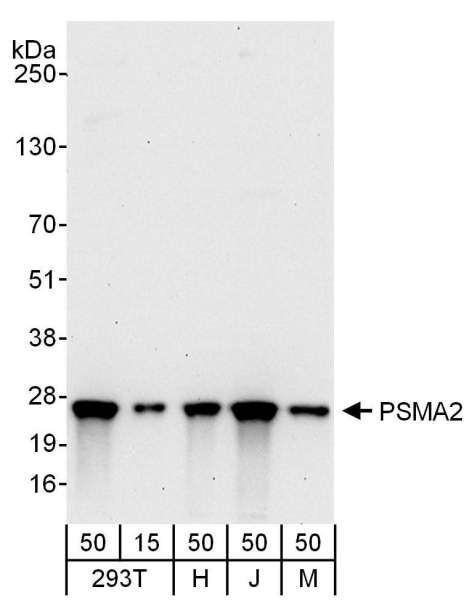 Anti-PSMA2