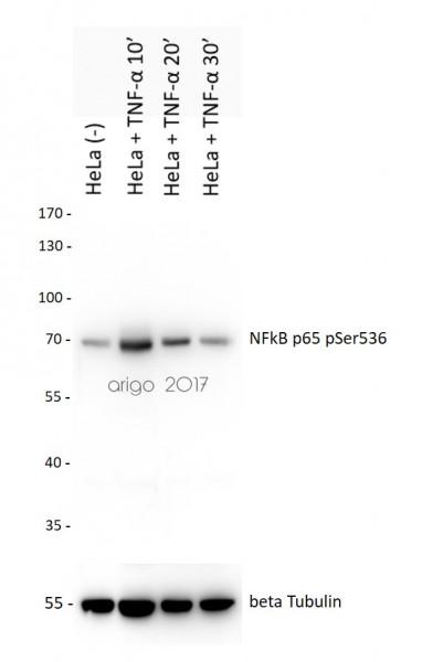 Anti-phospho-NFkB p65 (Ser536)