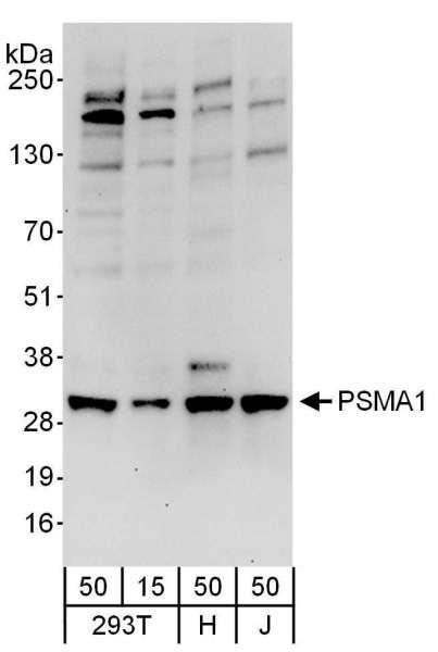 Anti-PSMA1