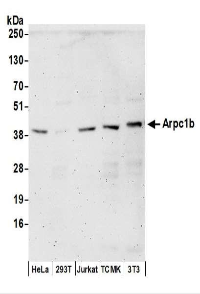 Anti-Arpc1b
