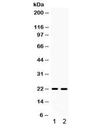 Anti-GPX4 (isoforms a/b/c)