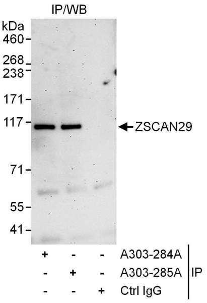 Anti-ZSCAN29