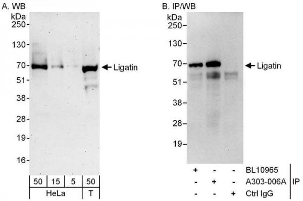 Anti-Ligatin