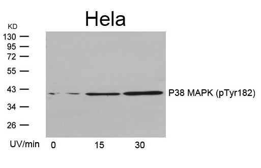 Anti-phospho-P38 MAPK (Tyr182)