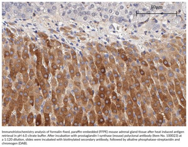 Anti-Prostaglandin I Synthase (mouse)