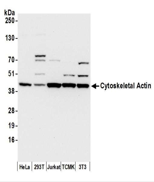 Anti-Cytoskeletal Actin
