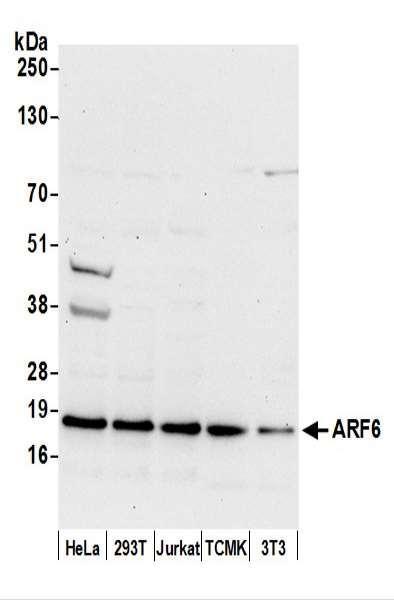 Anti-ARF6/ADP Ribosylation Factor 6