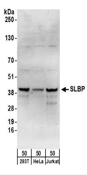 Anti-SLBP