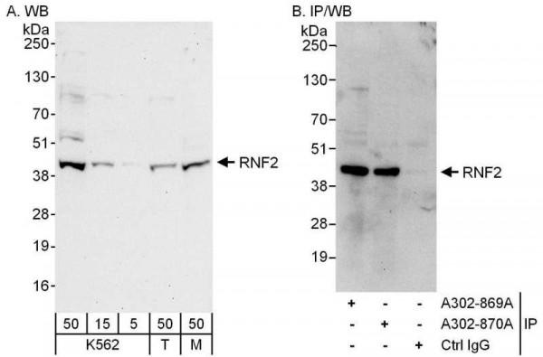 Anti-RNF2
