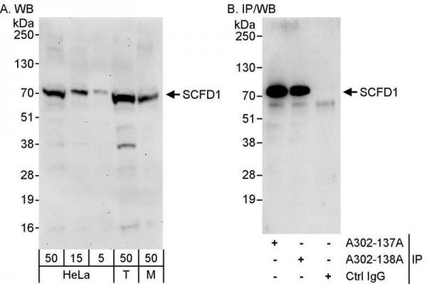 Anti-SCFD1