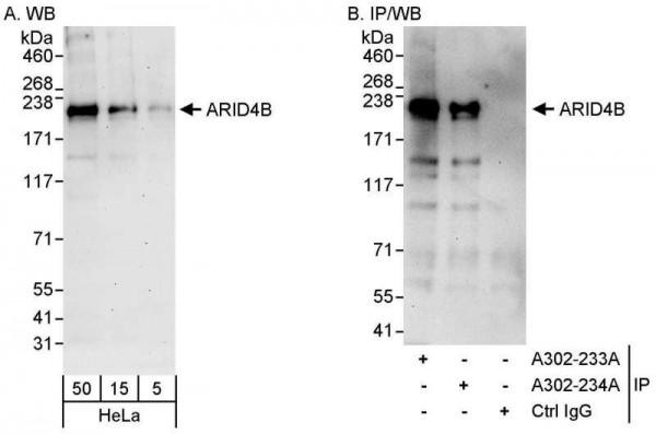 Anti-ARID4B