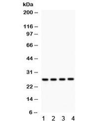 Anti-Flt3 ligand