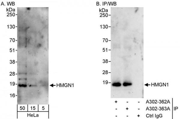 Anti-HMGN1