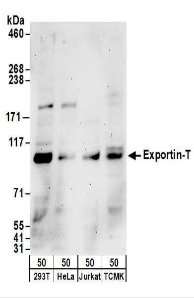 Anti-Exportin-T