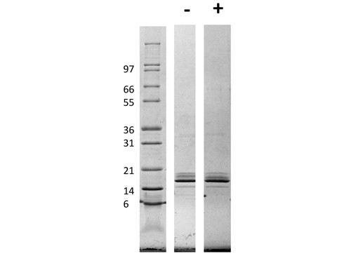 Monocyte Chemotactic Protein-1 (CCL2)