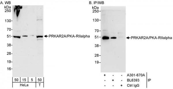 Anti-PRKAR2A/PKA-RIIalpha