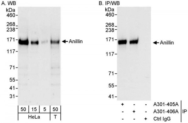 Anti-Anillin