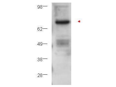 Anti-Protein Kinase C beta (PKC beta)