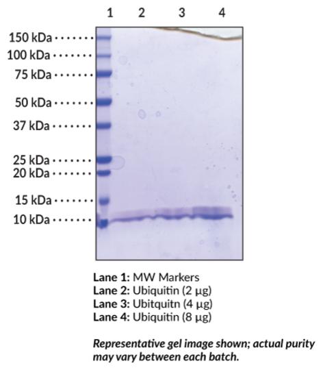 Ubiquitin (human recombinant)