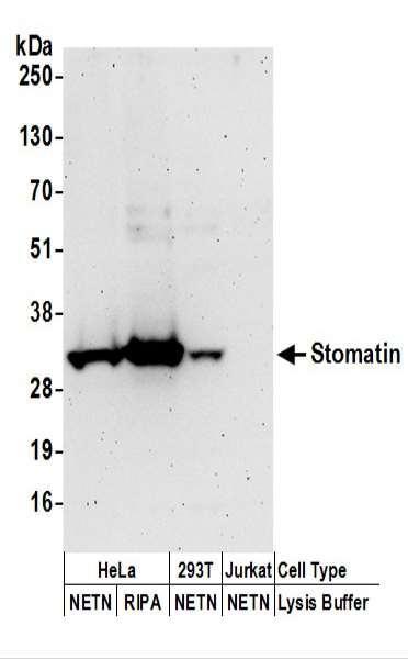Anti-Stomatin
