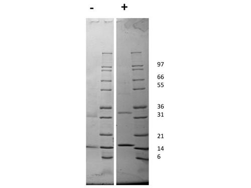Granulocyte Macrophage-Colony Stimulating Factor