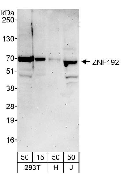 Anti-ZNF192