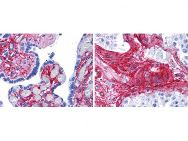 Anti-Collagen Type VI