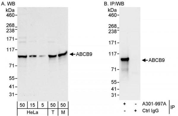 Anti-ABCB9