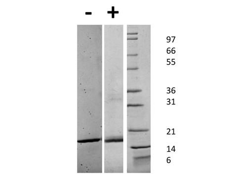 Fibroblast Growth Factor acidic
