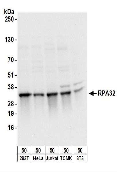 Anti-RPA32