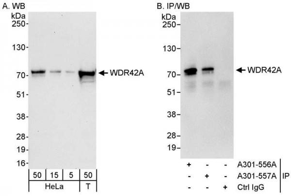 Anti-WDR42A