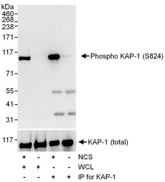 Anti-phospho-KAP-1 (Ser824)